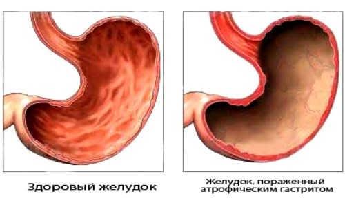 атрофия слизистой обоочки желудка