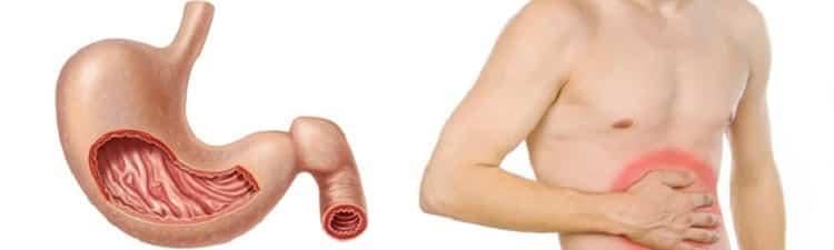 Гастрит желудка: первые признаки и симптомы, лечение у взрослых | Первые симптомы и признаки гастрита: как быстро распознать заболевание?