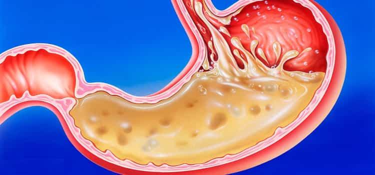 лекарственный препарат выравнивает содержание кислоты в желудке.